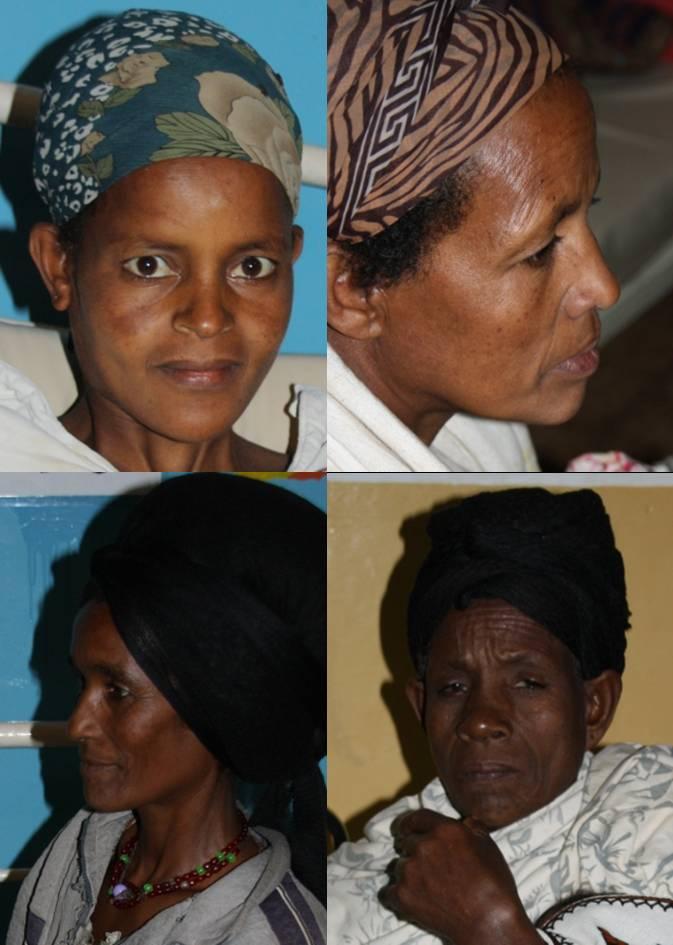 Auch diese Frauen haben eine Hysterektomie hinter sich…